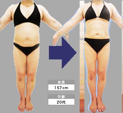 姫路店M・K様の3ヶ月での痩身ビフォーアフター(正面)