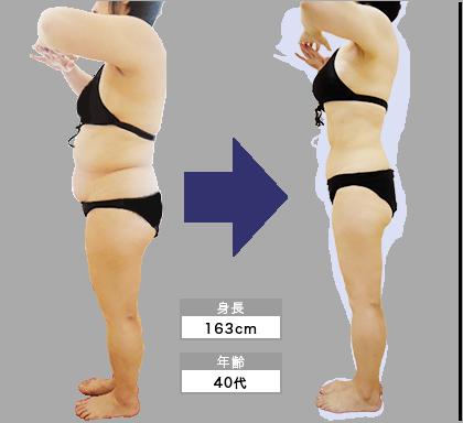池袋店M・U様の3ヶ月での痩身ビフォーアフター(横)