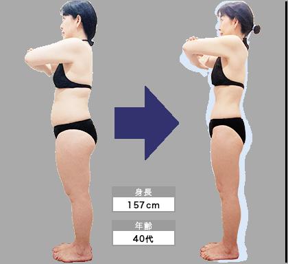 天神店O・T様の3ヶ月での痩身ビフォーアフター(横)